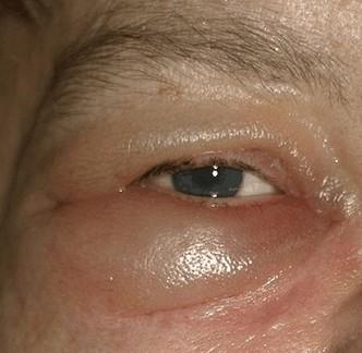 Oedeem oorzaken symptomen behandeling for Behandeling oedeem