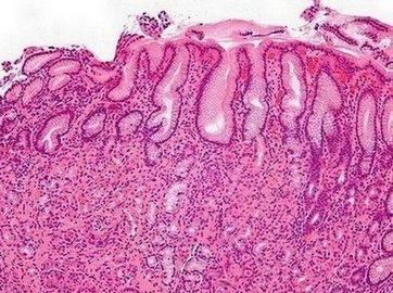 maagontsteking - doorsnede van maagslijmvlies onder de microscoop