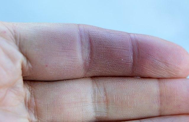 syndroom van Achenbach (paroxismaal vingerhematoom)