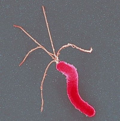 Helicobacter pylori-bacterie