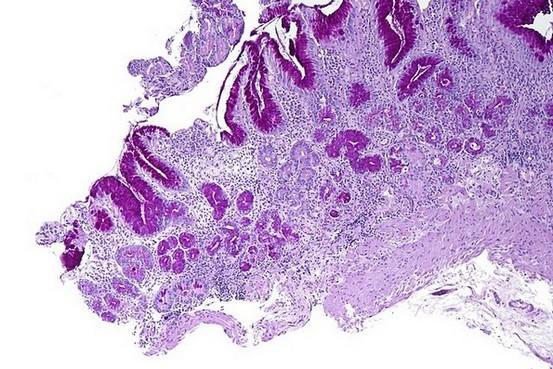 auto-immuun gastritis - biopt onder de microscoop