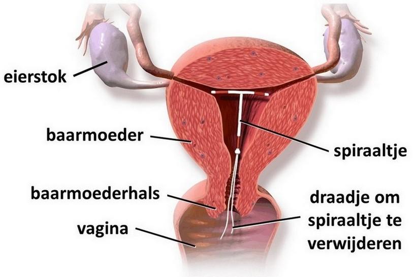 ligging van spiraaltje in de baarmoeder