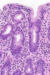 maagbiopt onder de microscoop - lymfocytaire gastritis