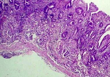 atrofische gastritis - maagslijmvlies onder de microscoop