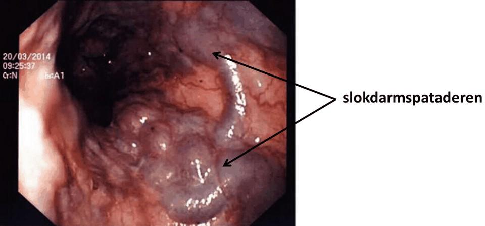 slokdarmspataderen (oesofagusvarices) zichtbaar in de slokdarm tijdens kijkonderzoek (oesofagoscopie)