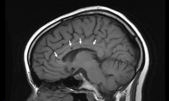 afwijkingen aan het corpus callosum op een MRI-scan van de hersenen van een patiënt met het syndroom van Susac