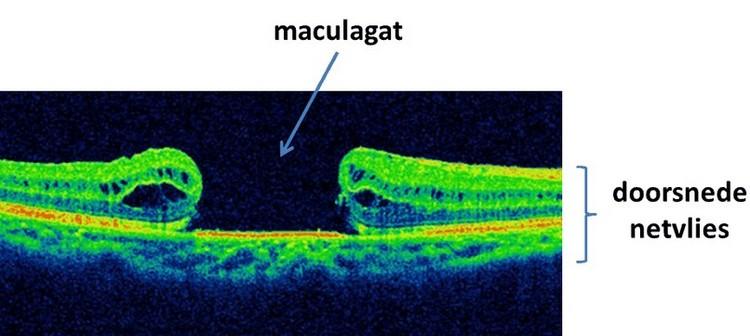 een maculagat is goed zichtbaar op een OCT-scan