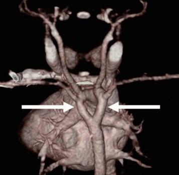 CT-scan van het hart - een dubbele aortaboog (pijlen) is een voorbeeld van een vasculaire ring