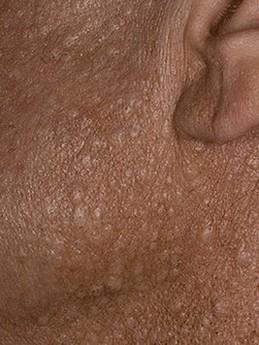 bultjes bij het linker oor bij een patiënt met BHD-syndroom
