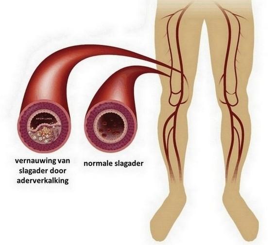 perifeer arterieel vaatlijden door aderverkalking
