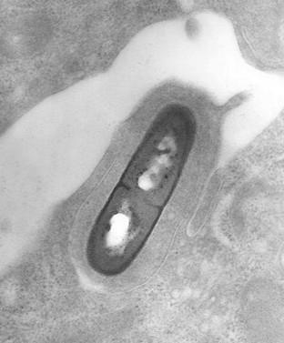 Listeria bacterie afgebeeld met een elektronenmicroscoop