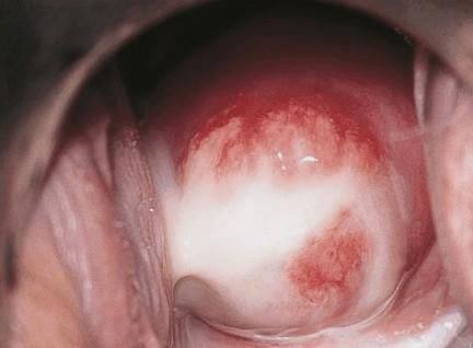 baarmoedermond met pus bij een vrouw met een Chlamydia infectie