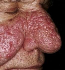 bloemkoolneus (rhinophyma) komt voor als complicatie bij rosacea