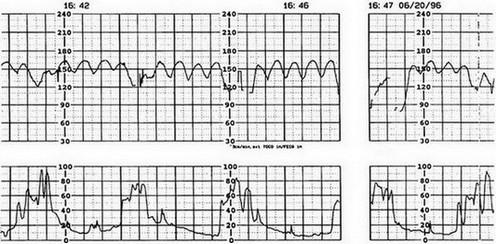 cardiotocogram (CTG) bij placentaloslating