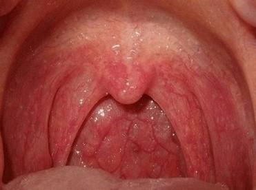 patiënt met keelpijn en rode keel door keelontsteking