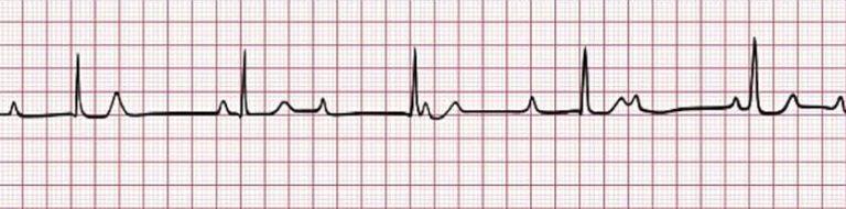 hartfilmpje van iemand met een 3de graads AV-blok