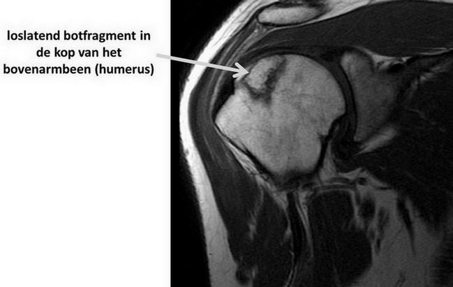 osteonecrose van de schouder op MRI-scan