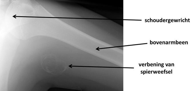 myositis ossificans in de bovenarm - bron: Dr Angela Byrne, Radiopaedia.org