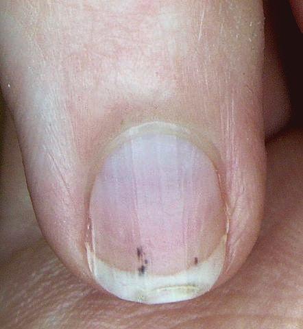 splinterbloedingen onder de nagel