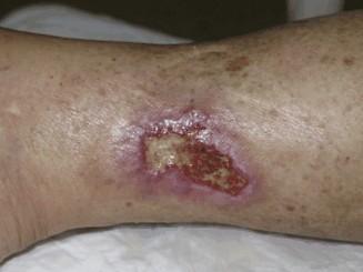 ulcus van Martorell op het onderbeen